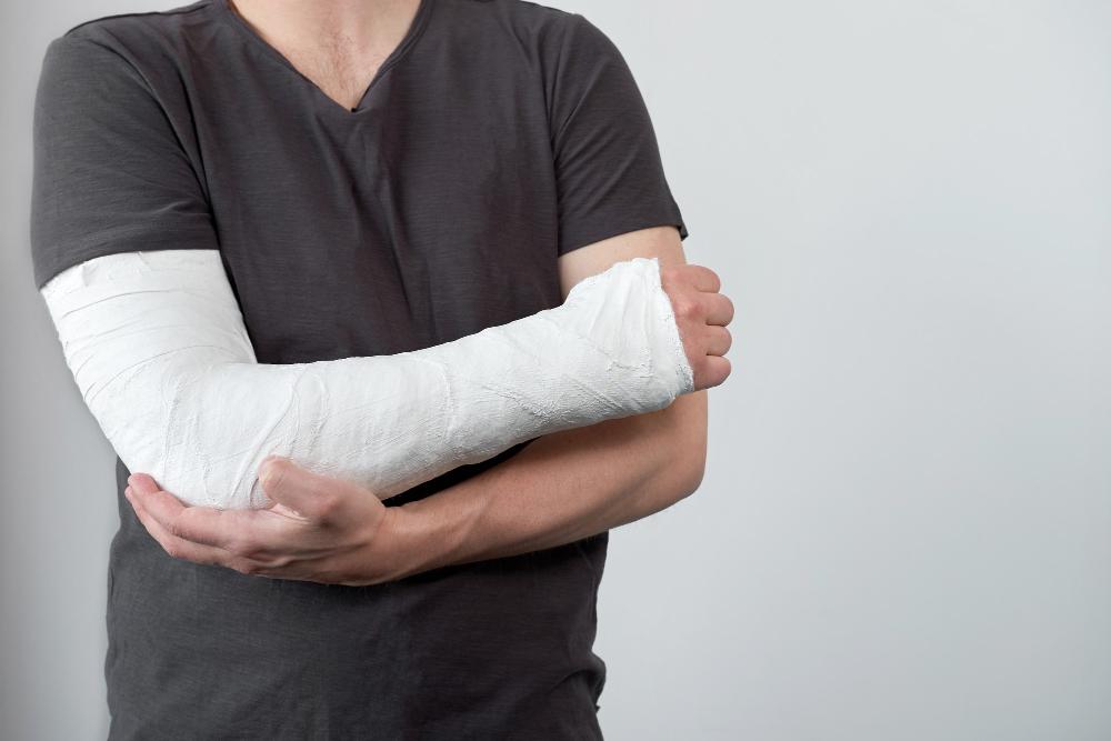 ¿Cuál es la mejor posición para dormir con una fractura de húmero?